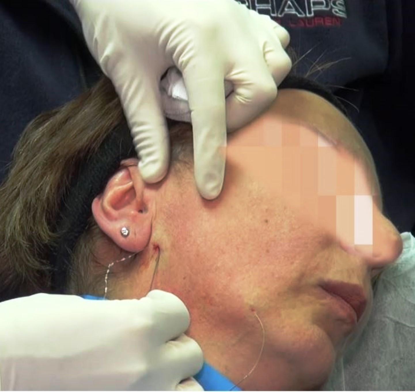 המחט מוכנסת ליד האוזן מעל הלסת