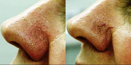 סילוק נימים באף על ידי לייזר במדיקל פרו